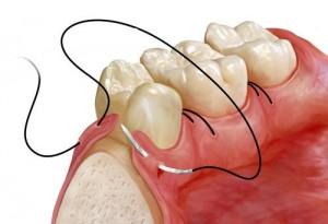 oralna-hirurgija