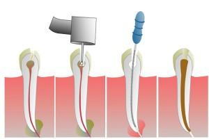 Endodoncija-Stomatoloske-usl uge-Ordinacija-Magic-Dent